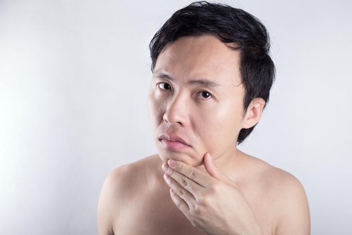大人メンズが気をつけたい肌荒れの症状