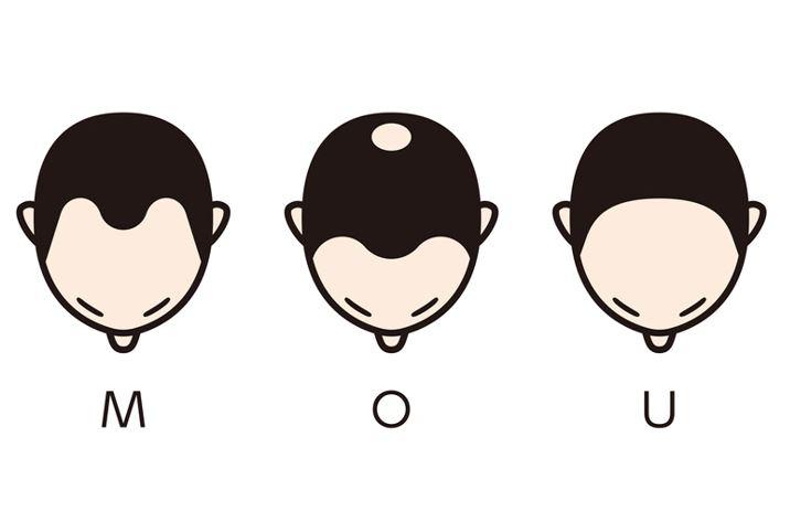 薄毛の進行パターン4種類
