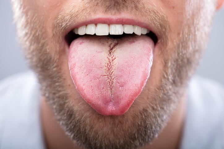 舌の汚れ「舌苔(ぜったい)」とは?