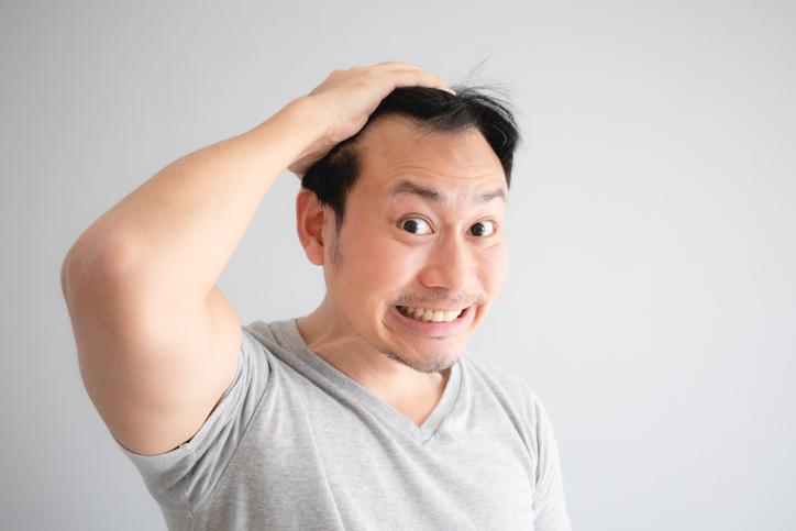 「薄毛」をまねく原因