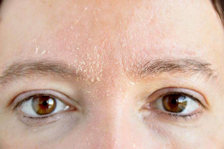 デメリット③|粉が吹いて不潔な印象を与える