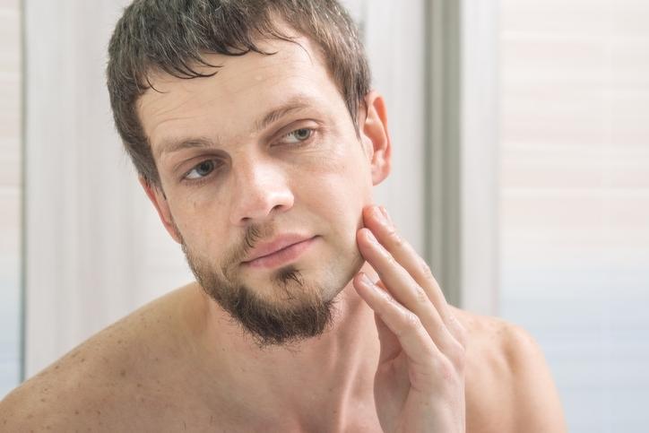 老け顔に見られるオトコ③ 顔の皮膚がたるんでいる